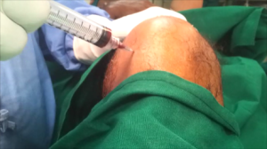 PRP knee injections